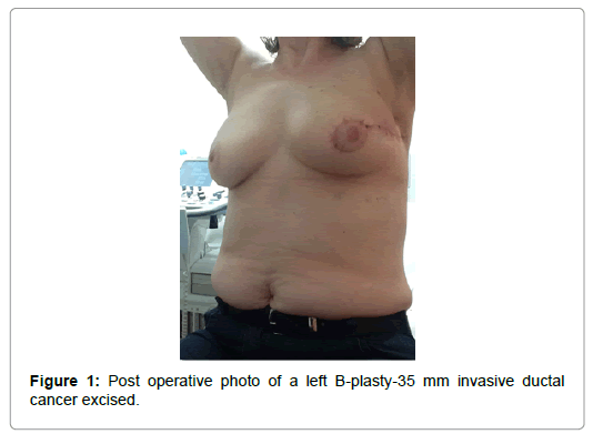 Breast-Cancer-operative-photo