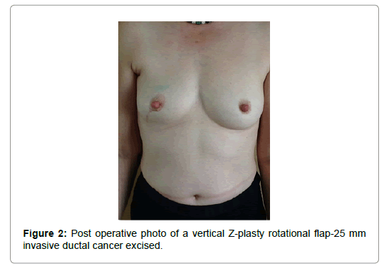 Breast-Cancer-vertical-Z-plasty