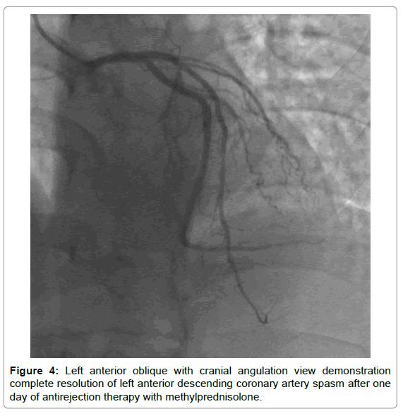 Cardiovascular-Pharmacology-artery-spasm