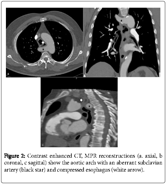 Gastrointestinal-Disorders-Contrast-enhanced-CT-MPR-reconstructions