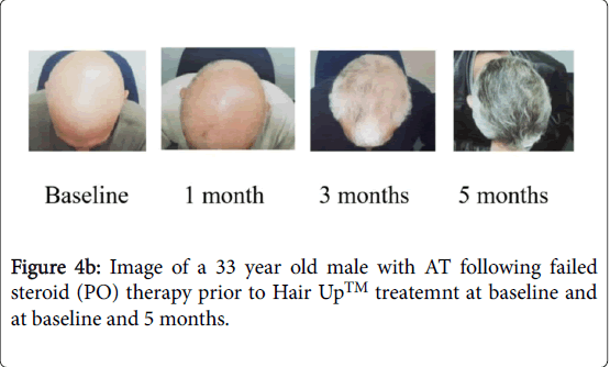Hair-Therapy-Image-33-year-old-male-with-AT-following-failed