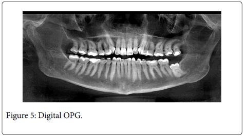 Interdisciplinary-Medicine-Dental-Digital-OPG