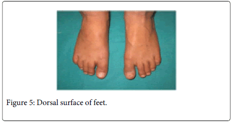 Interdisciplinary-Medicine-Dental-Dorsal-surface-feet