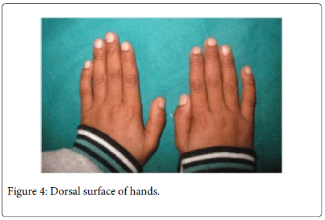 Interdisciplinary-Medicine-Dental-Dorsal-surface-hands
