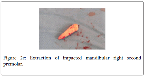 Interdisciplinary-Medicine-Dental-Extraction-impacted-mandibular