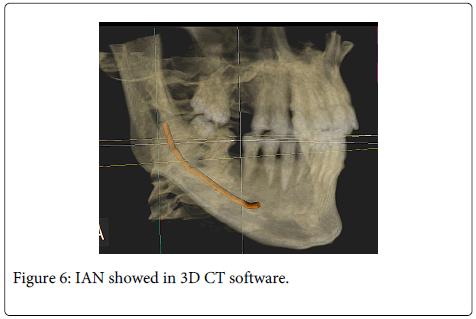 Interdisciplinary-Medicine-Dental-IAN-showed-software