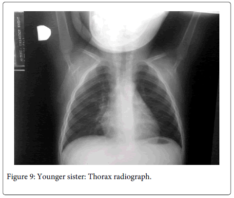Interdisciplinary-Medicine-Dental-Thorax-radiograph