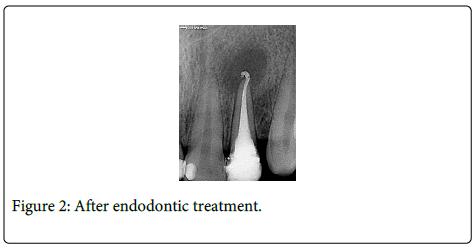 Interdisciplinary-Medicine-Dental-endodontic-treatment