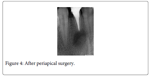 Interdisciplinary-Medicine-Dental-periapical-surgery