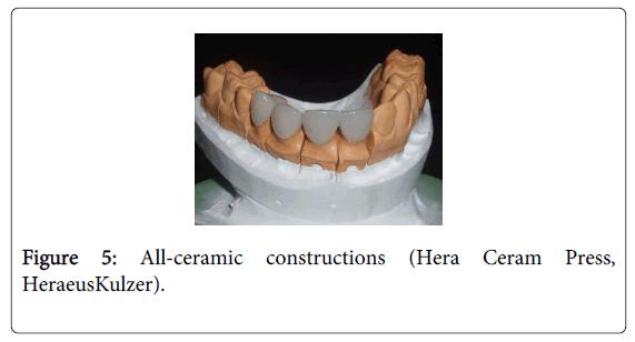 Medicine-Dental-Science-All-ceramic-constructions