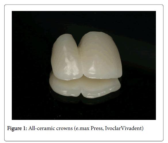 Medicine-Dental-Science-All-ceramic-crowns