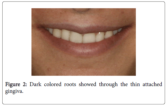 Medicine-Dental-Science-Dark-colored-roots-showed