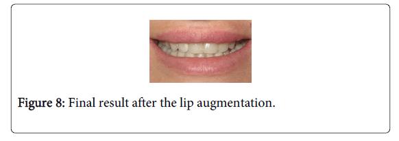 Medicine-Dental-Science-Final-result-after-lip-augmentation