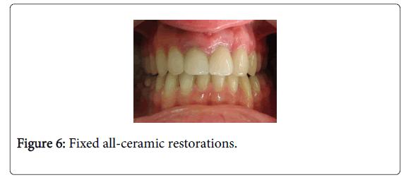 Medicine-Dental-Science-Fixed-all-ceramic-restorations