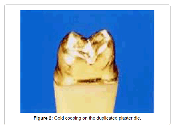 Medicine-Dental-Science-Gold-cooping-duplicated-plaster