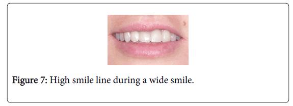 Medicine-Dental-Science-High-smile-line-during-wide-smile