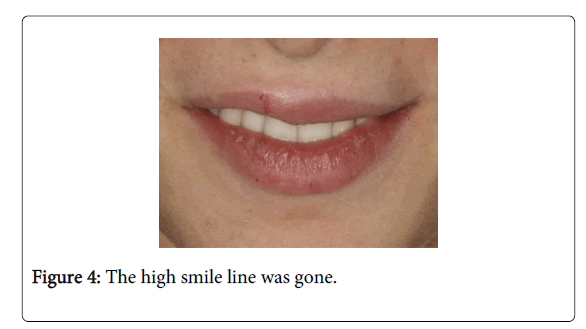 Medicine-Dental-Science-The-high-smile-line-was-gone