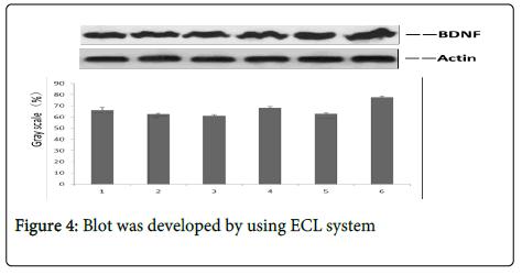Neurorehabilitation-ECL-system