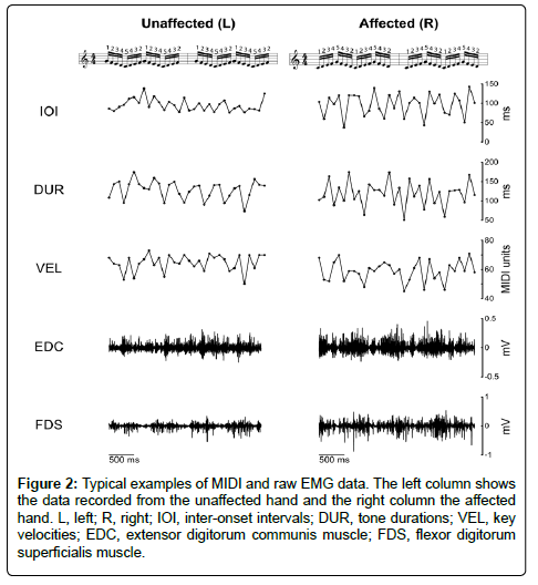 Neurorehabilitation-MIDI-raw-EMG-data
