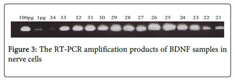 Neurorehabilitation-RT-PCR-amplification