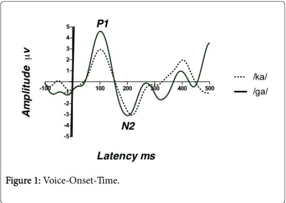 Otolaryngology-Voice-Onset