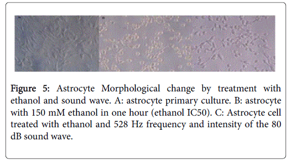 The Effects of 528 Hz Sound Wave to Reduce Cell Death in