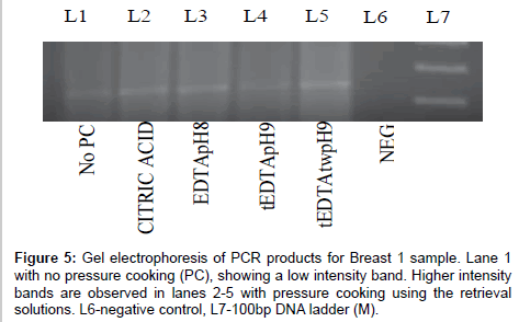 advanced-techniqes-biology-medicine-electrophoresis-of-PCR