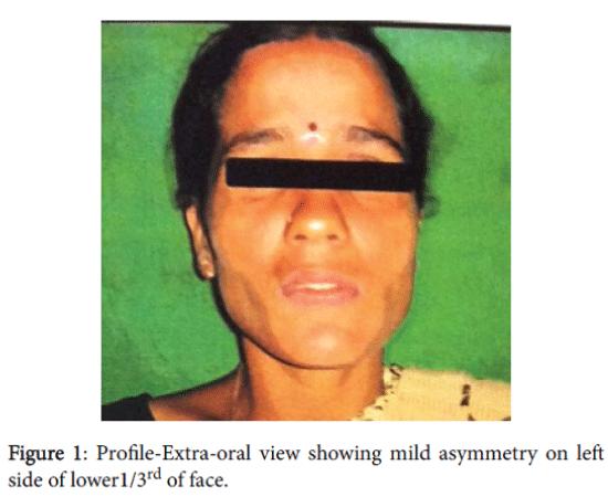 advances-cancer-prevention-mild-asymmetry
