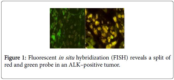 advances-oncology-research-fluorescent-hybridization