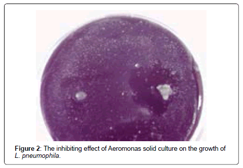 air-water-borne-diseases-aeromonas