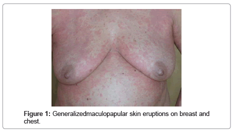 allergy-therapy-Generalizedmaculopapular