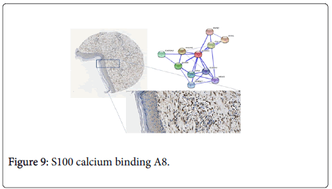 allergy-therapy-calcium-binding
