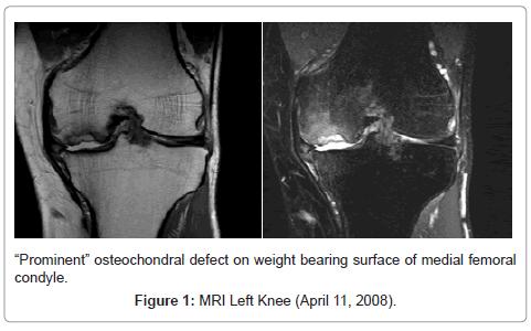 alternative-integrative-medicine-Left-Knee-April