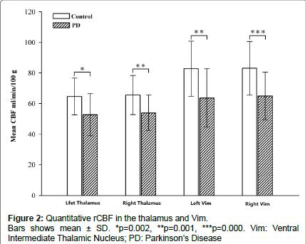 alzheimers-disease-parkinsonism-Intermediate-Thalamic