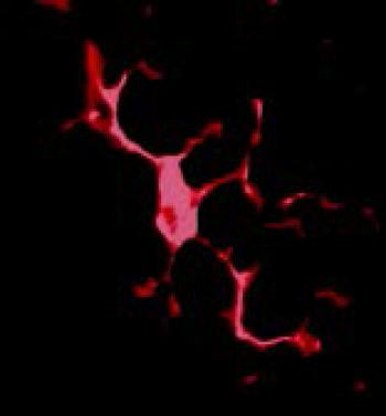 alzheimers-disease-parkinsonism-Resting-microglia
