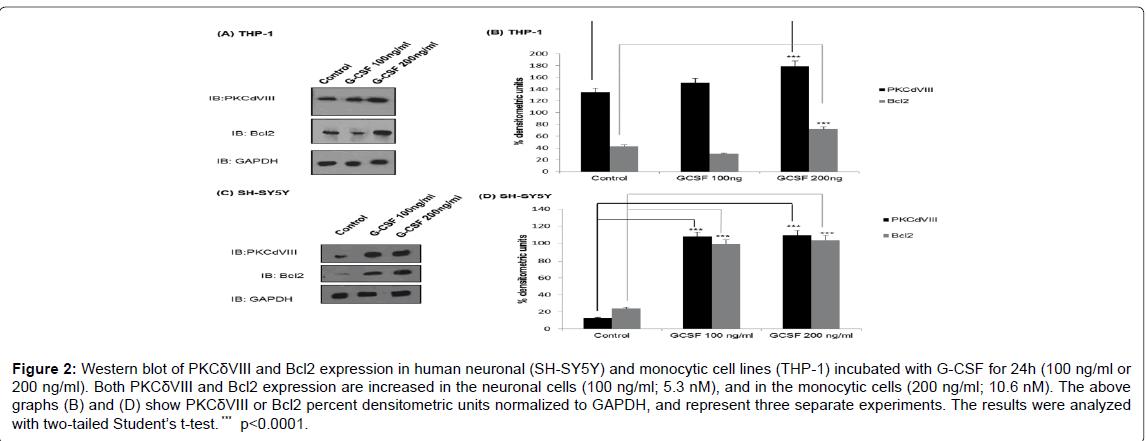 alzheimers-disease-parkinsonism-human-neuronal