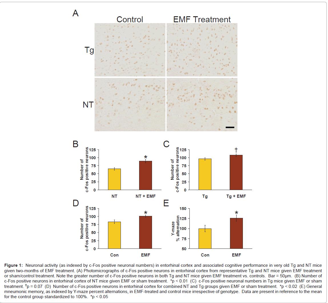 alzheimers-disease-parkinsonism-positive-neuronal