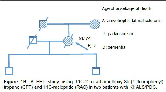 alzheimers-disease-parkinsonism-raclopride-RAC
