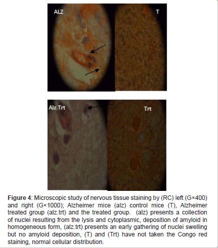 alzheimers-disease-parkinsonism-tissue-staining