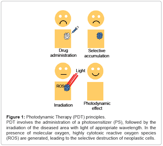 analytical-bioanalytical-techniques-Photodynamic-Therapy-principles
