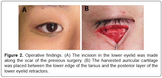 anaplastology-incision-eyelid-surgery
