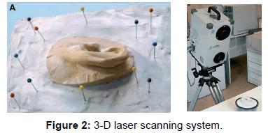 anaplastology-laser-scanning-system