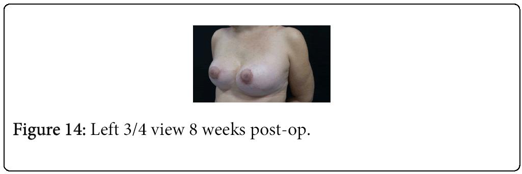 anaplastology-post-op