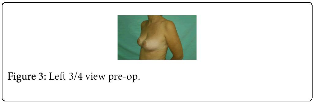 anaplastology-pre-op