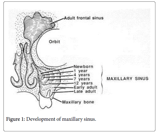 anatomy-physiology-Development-maxillary-sinus