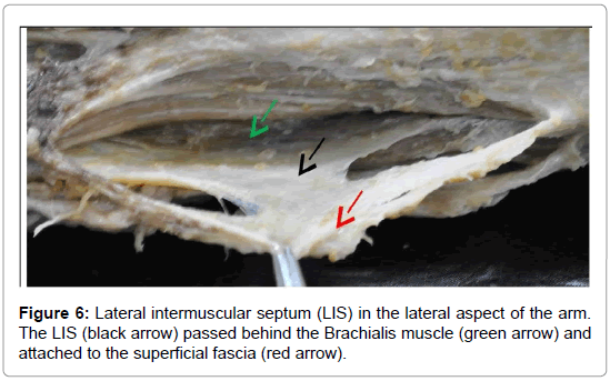 anatomy-physiology-Lateral-intermuscular