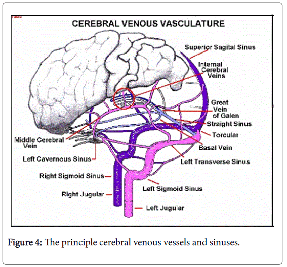 Cerebral Venous Malformation As A Cause Of Neonatal Intra