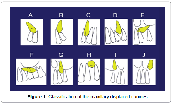 anatomy-physiology-maxillary-displaced