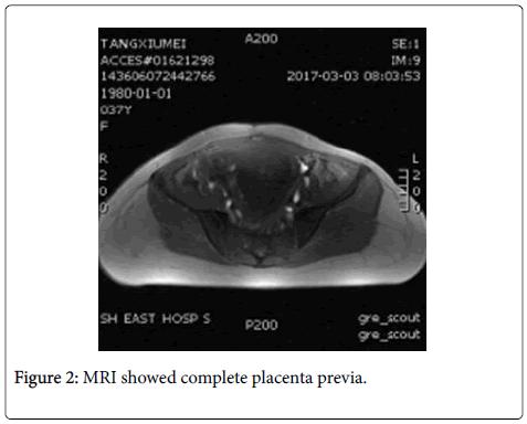 Intraoperative Hemorrhage in a Dangerous Placenta Previa Patient-A ...