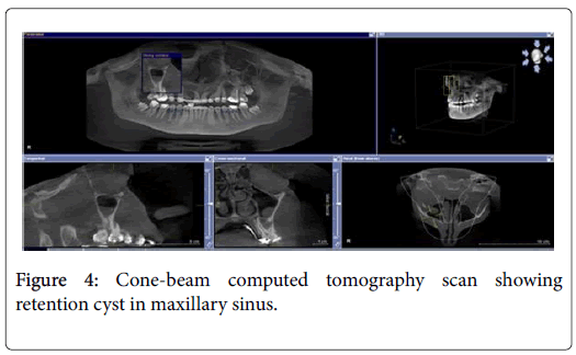 Maxillary Sinus Abnormalities Detected By Dental Cone Beam Computed